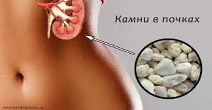 какие лекарства принимать паразитов в организме
