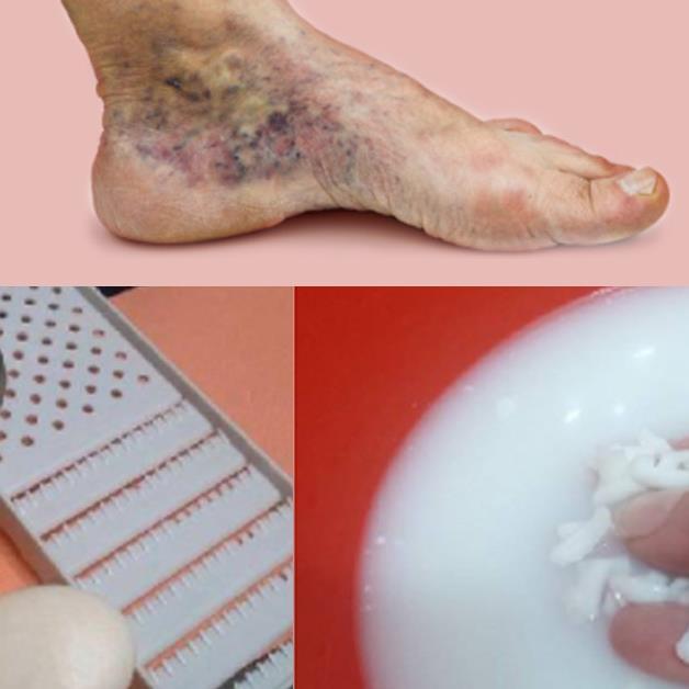 Лечение тромбов в домашних условиях