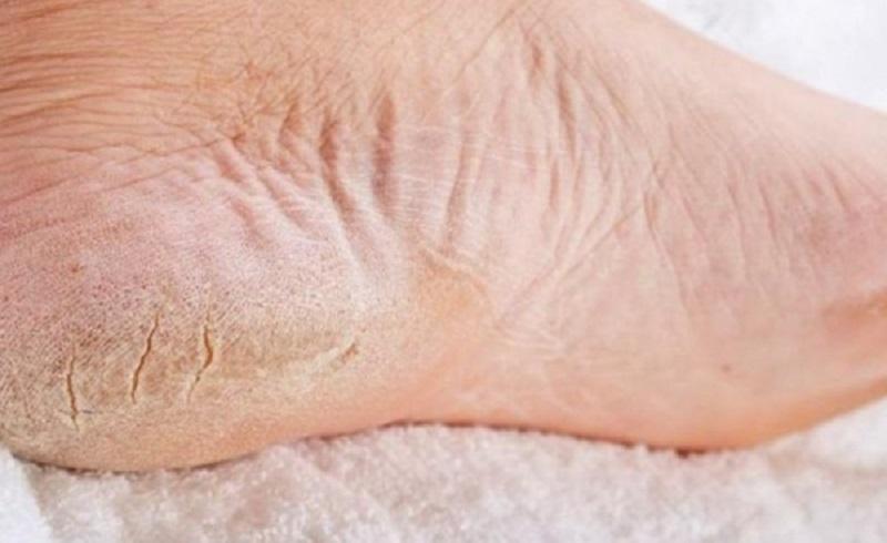 Как избавится быстро от огрубевшей кожи в домашних условиях