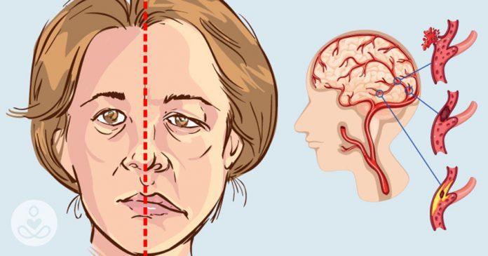 Каковы ранние признаки и симптомы инсульта?