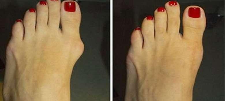 операция по удалению сустава на пальце ноги