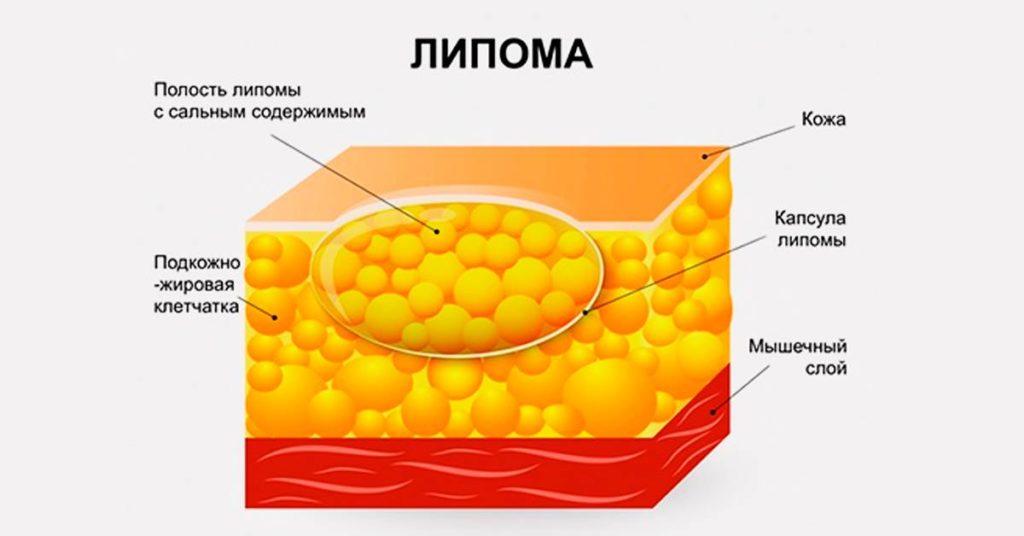 Рецепты от жировиков на теле