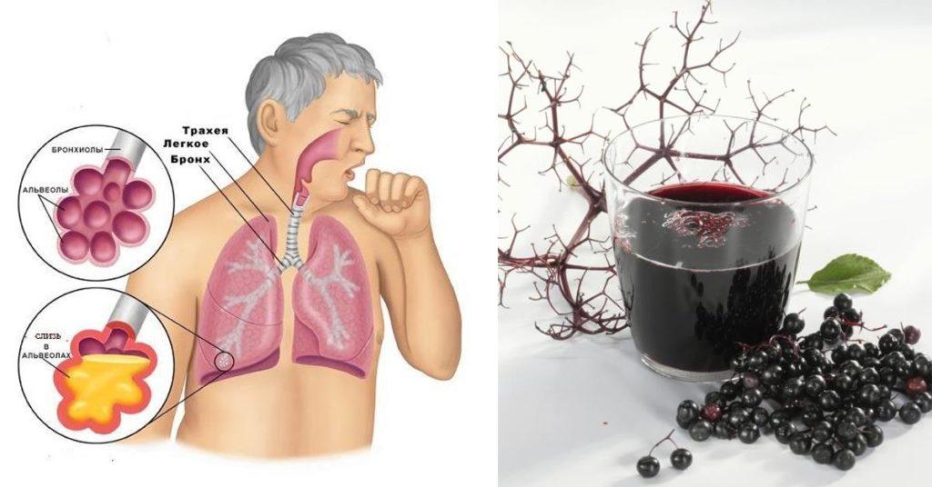 allergie en astma